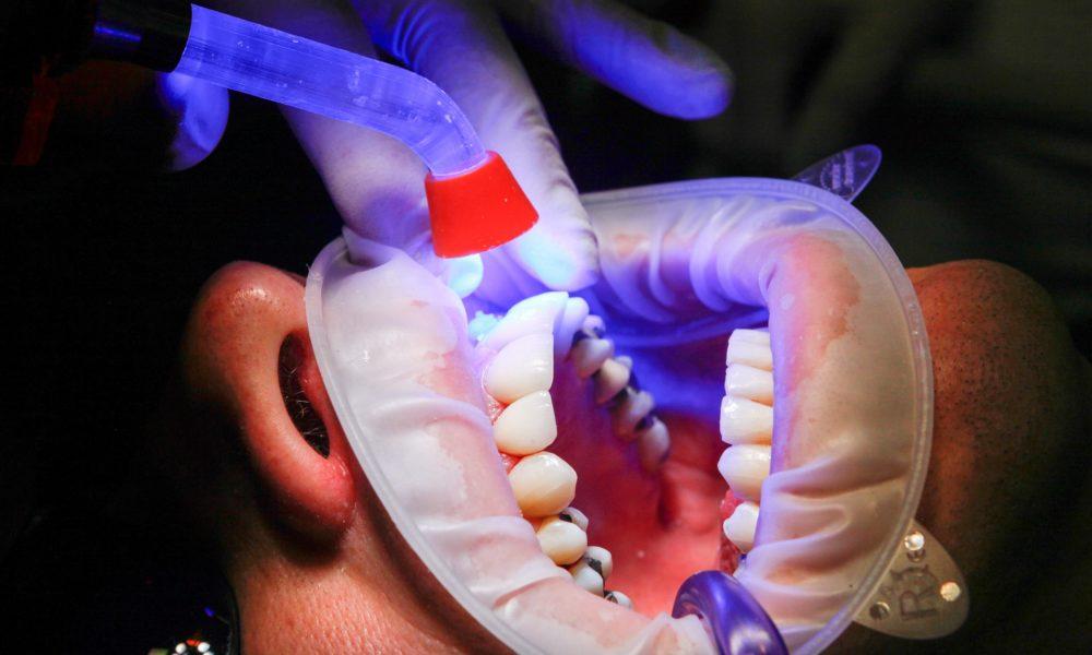 Zła metoda żywienia się to większe deficyty w jamie ustnej oraz dodatkowo ich utratę