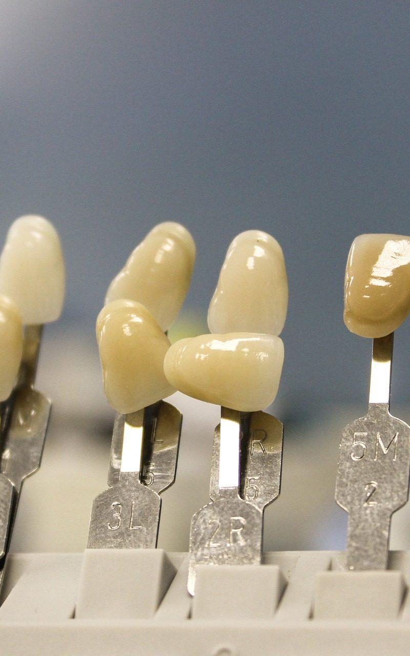 Prześliczne nienaganne zęby także godny podziwu cudny uśmieszek to powód do zadowolenia.