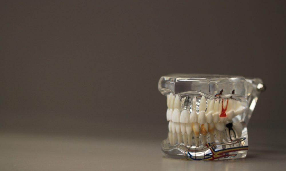 Zła droga żywienia się to większe braki w ustach oraz również ich brak